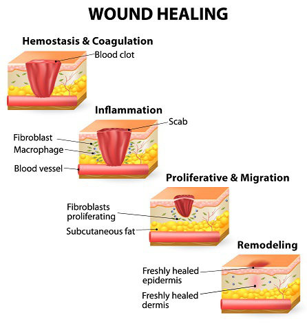 Stages-of-Healing_image